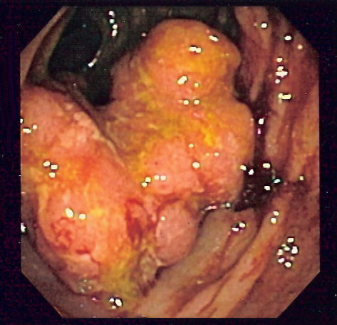 Colorectal_cancer_endo_2